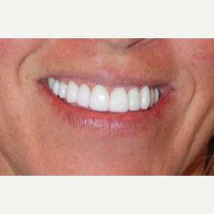 45-54 year old woman treated with Gum Lift and Veneers after 3273737