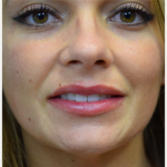 Restylane Lip Filler after 3514887