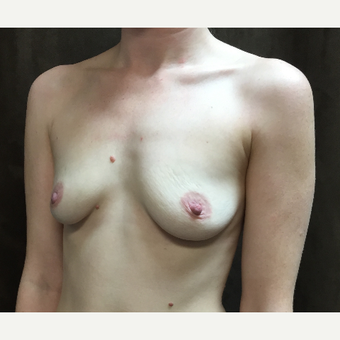 25-34 year old woman treated with Breast Augmentation before 3049464