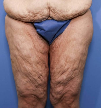 38 year old female treated for thigh laxity following massive weight loss