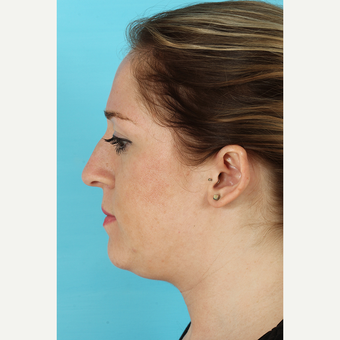 25-34 year old woman treated with Rhinoplasty before 3691161