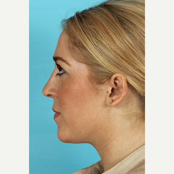 25-34 year old woman treated with Rhinoplasty after 3691161