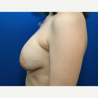 25-34 year old woman treated with Breast Implant Revision before 3104802