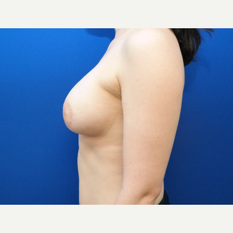 25-34 year old woman treated with Breast Implant Revision after 3104802