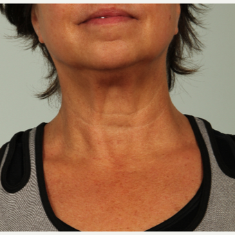56 year old woman treated with Infini RF after 3162981