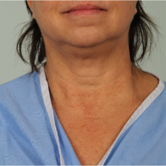 56 year old woman treated with Infini RF before 3162981