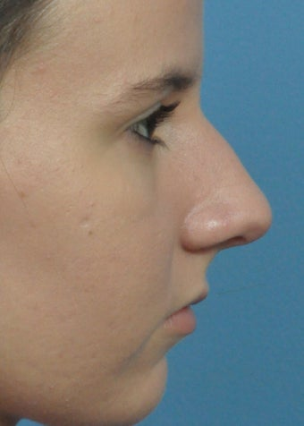 18-24 year old woman treated with Rhinoplasty before 2106946