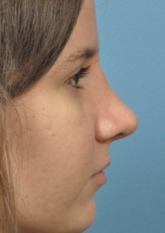 18-24 year old woman treated with Rhinoplasty after 2106946