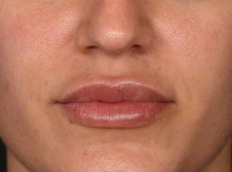 25-34 year old woman treated with Lip Augmentation after 3188102