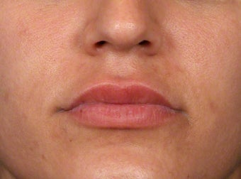 25-34 year old woman treated with Lip Augmentation before 3188102