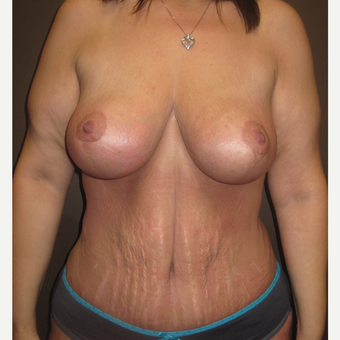 35-44 year old woman treated with Breast Lift after 3321046