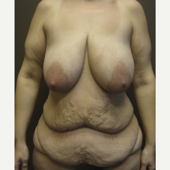 35-44 year old woman treated with Breast Lift before 3321046
