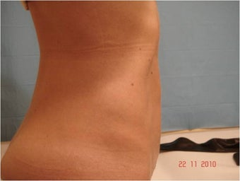 Abdominoplasty Tummy Tuck after 849395