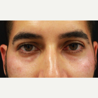 38 year old male treated with Belotero injection to tear troughs (undereyes) and forehead lines before 3055263