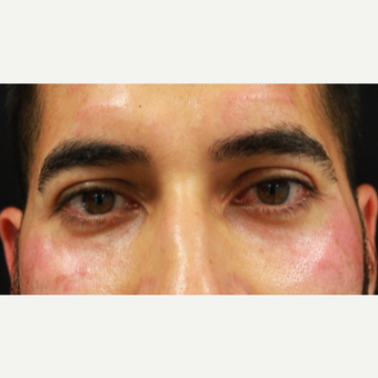 38 year old male treated with Belotero injection to tear troughs (undereyes) and forehead lines after 3055263