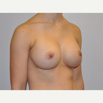 25-34 year old woman treated with Breast Augmentation 1745667