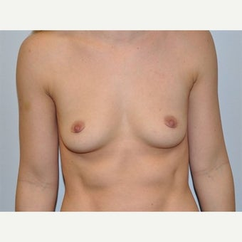 25-34 year old woman treated with Breast Augmentation before 1745667