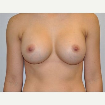 25-34 year old woman treated with Breast Augmentation after 1745667
