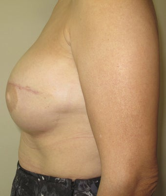Breast Reconstruction Revision 735298