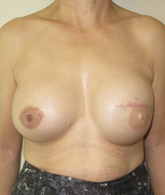 Breast Reconstruction Revision after 735298