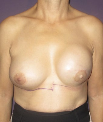 Breast Reconstruction Revision before 735298