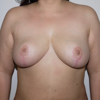 25-34 year old woman treated with Breast Reduction after 3249520