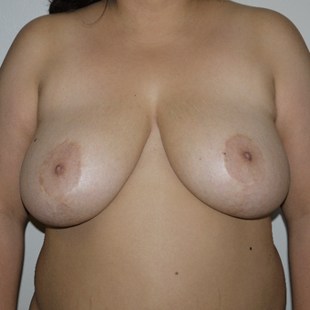 25-34 year old woman treated with Breast Reduction before 3249520