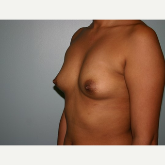 Breast Augmentation before 3562133