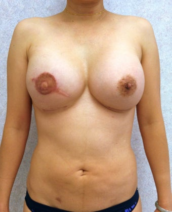 47 Year Old Female underwent breast reconstruction after breast cancer