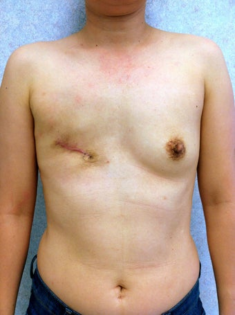 47 Year Old Female underwent breast reconstruction after breast cancer before 1069566