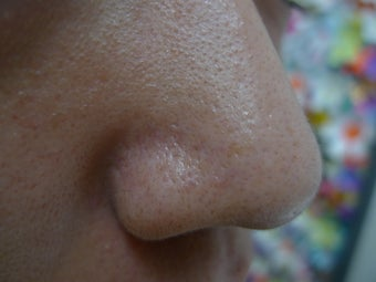 Enlarged Pores after 1432322