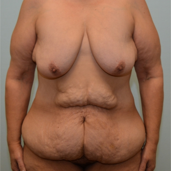 Breast lift, implants, tummy tuck, and excision of excess skin following massive weight loss before 3334031