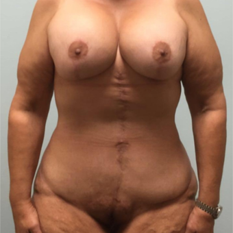 Breast lift, implants, tummy tuck, and excision of excess skin following massive weight loss after 3334031