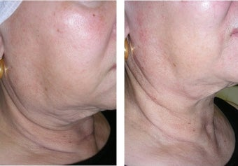 Thermage Skin Tightening for the Neck