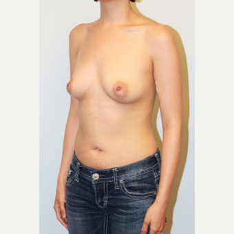 25-34 year old woman treated with Breast Implants before 3027375