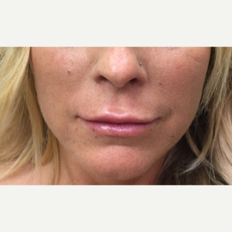 43 year old woman treated with Restylane Silk to the upper and lower lips after 3036797