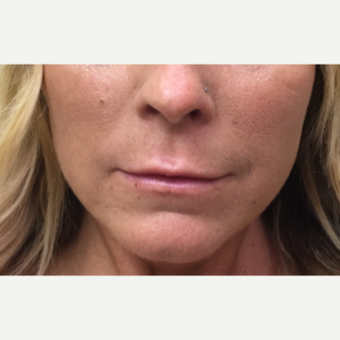 43 year old woman treated with Restylane Silk to the upper and lower lips before 3036797