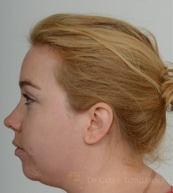 25-34 year old woman treated with Chin Implant before 3264452