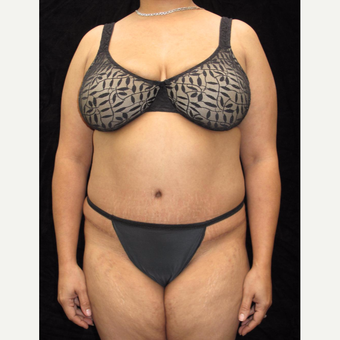 43 year old woman treated with Tummy Tuck after 3025935