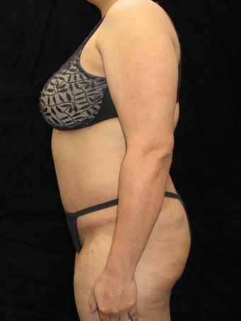 43 year old woman treated with Tummy Tuck 3025935