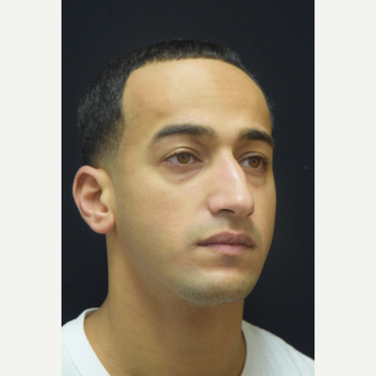 25-34 year old man treated with Rhinoplasty before 3181693