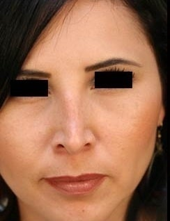 HIspanic Female Revision Rhinoplasty