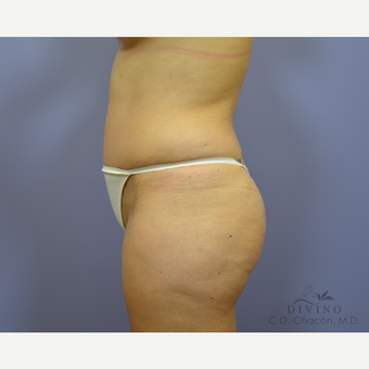 25-34 year old woman treated with Tummy Tuck after 3422021