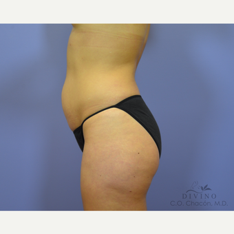 25-34 year old woman treated with Tummy Tuck before 3422021