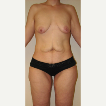 25-34 year old woman treated with Mommy Makeover before 3180858