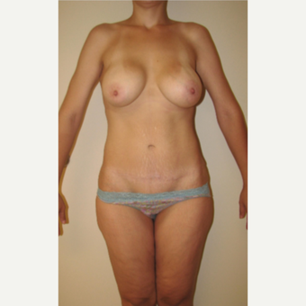 25-34 year old woman treated with Mommy Makeover after 3180858