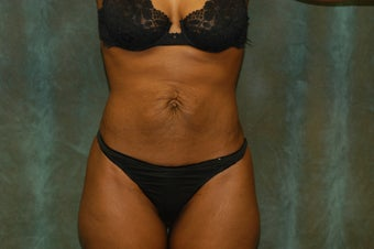 Women's Tummy Tuck before 558700