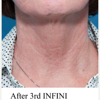 55-64 year old woman treated with INFINI for neck wrinkles after 3412048