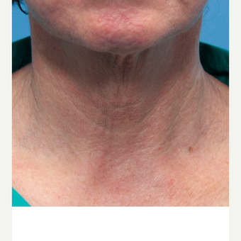 55-64 year old woman treated with INFINI for neck wrinkles before 3412048