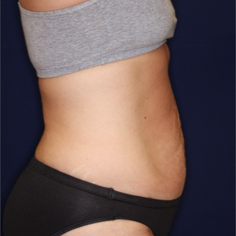 45-54 year old woman treated with Tummy Tuck before 3075303